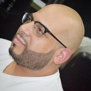 18-the-bald-head