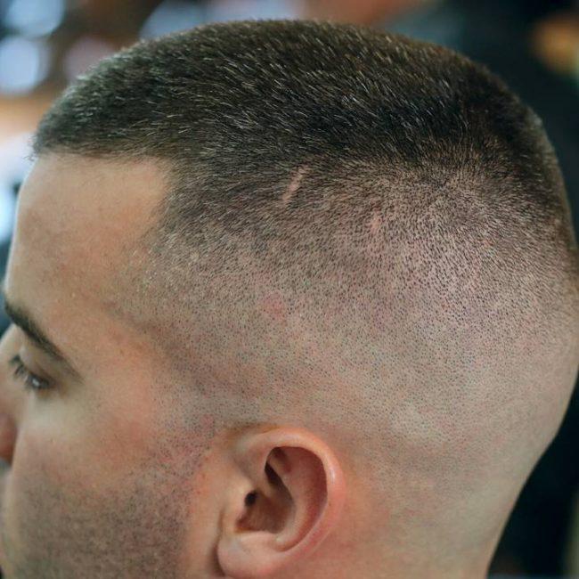 22-natural-bald-fade