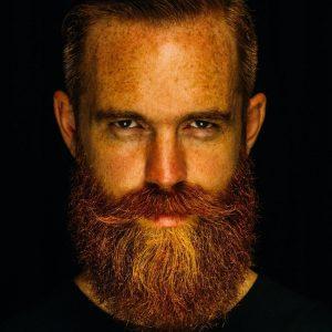 23-freckled-beard