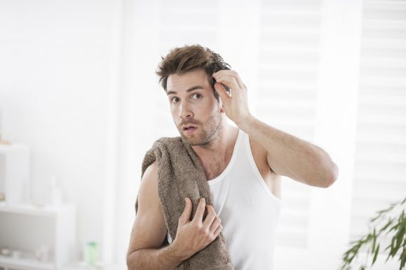 10 Tips on How to Cope With Bald Spot – Always Remain Attractive