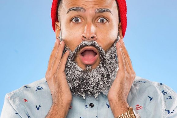 How to Get Rid of Beard Dandruff – 10 Simple Home Remedies